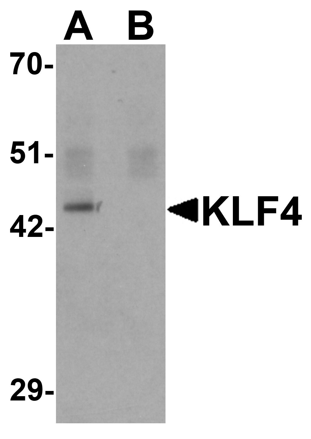 Western blot analysis of KLF4 in mouse liver tissue lysate with KLF4 antibody at 1 ug/ml in (A) the absence and (B) the presence of blocking peptide.