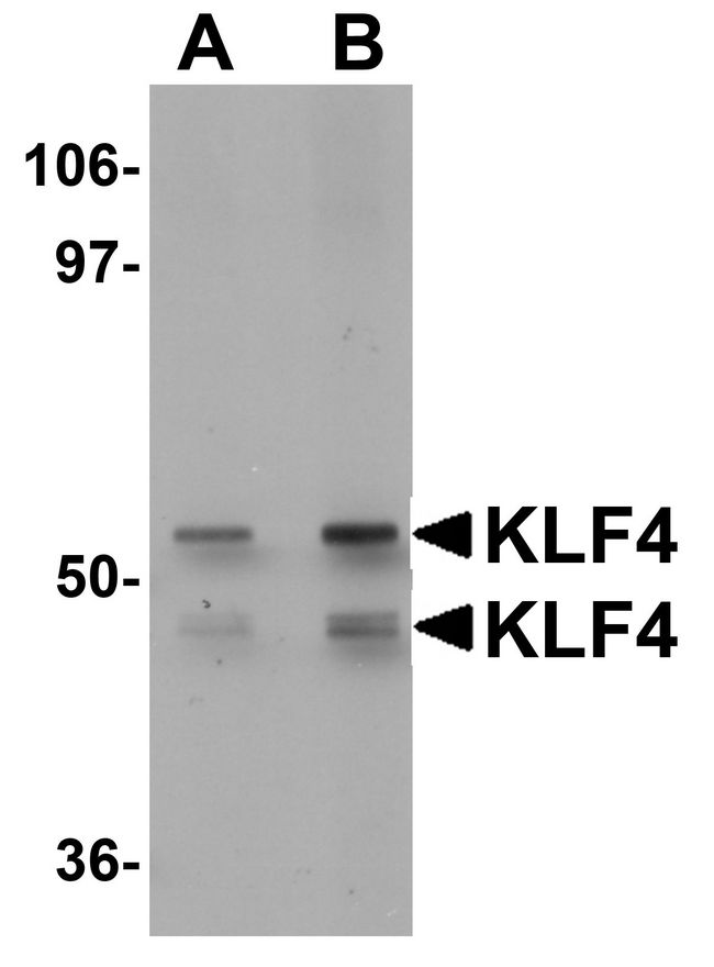 Western blot analysis of KLF4 in human liver tissue lysate with KLF4 antibody at (A) 1 and (B) 2 ug/ml.