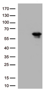 KLF5 / BTEB2 Antibody - HEK293T cells were transfected with the pCMV6-ENTRY control. (Left lane) or pCMV6-ENTRY KLF5. (Right lane) cDNA for 48 hrs and lysed. Equivalent amounts of cell lysates. (5 ug per lane) were separated by SDS-PAGE and immunoblotted with anti-KLF5. (1:2000)