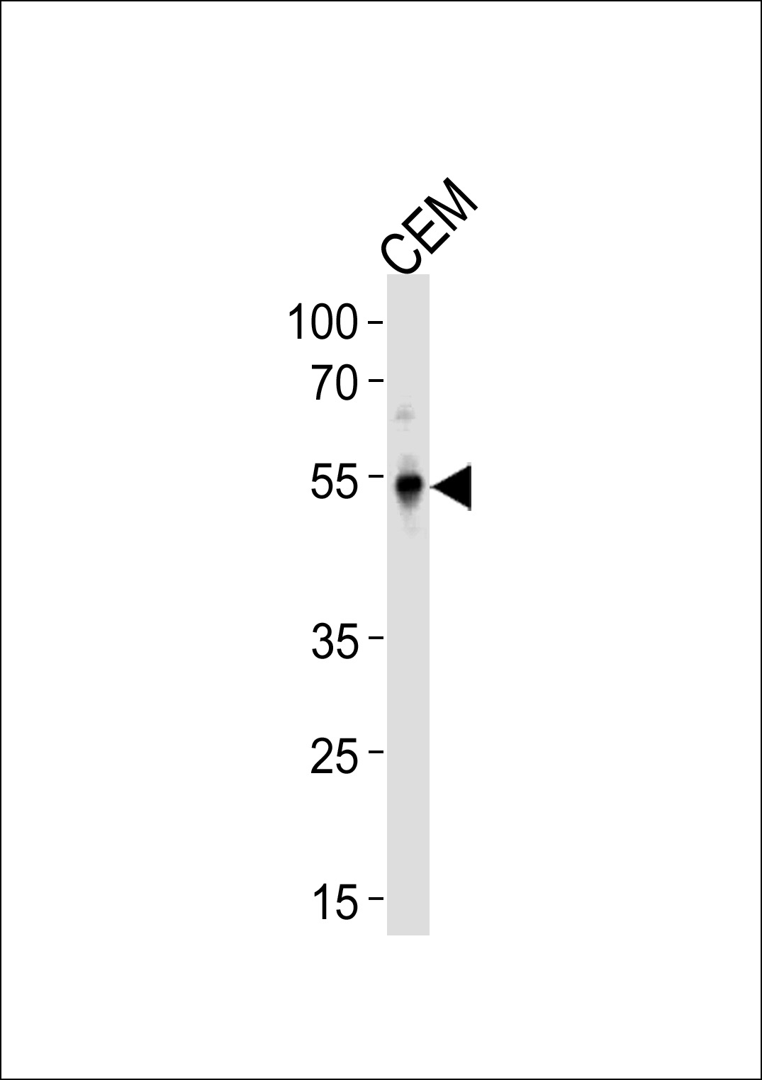 KLF5 Antibody western blot of CEM cell line lysates (35 ug/lane). The KLF5 antibody detected the KLF5 protein (arrow).