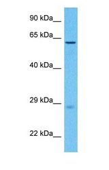Western blot of KLF5 Antibody with human Stomach Tumor lysate.  This image was taken for the unconjugated form of this product. Other forms have not been tested.