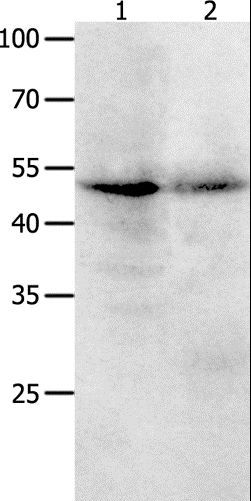 Western blot analysis of Jurkat cell and human ovarian cancer tissue , using KLF5 Polyclonal Antibody at dilution of 1:1700.