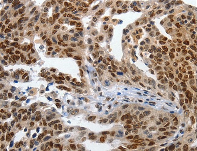 Immunohistochemistry of Human ovarian cancer using KLF5 Polyclonal Antibody at dilution of 1:120.