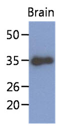 Western Blot: The extract of mouse brain (40 ug) were resolved by SDS-PAGE, transferred to PVDF membrane and probed with anti-human KLF7 antibody (1:1000). Proteins were visualized using a goat anti-mouse secondary antibody conjugated to HRP and an ECL detection system.