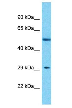 KLHDC10 Antibody - KLHDC10 antibody Western Blot of Breast Tumor. Antibody dilution: 1 ug/ml.  This image was taken for the unconjugated form of this product. Other forms have not been tested.