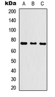 KLHL29 Antibody - Western blot analysis of KLHL29 expression in HEK293T (A); NS-1 (B); PC12 (C) whole cell lysates.
