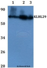 KLHL29 Antibody - Western blot of KLHL29 antibody at 1:500 dilution Line1:HEK293T whole cell lysate Line2:PC12 whole cell lysate Line3:sp20 whole cell lysate.