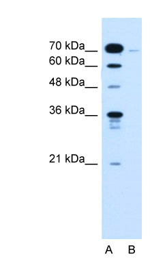 KLHL31 antibody ARP44458_P050-NP_001003760-KLHL31(kelch-like 31 (Drosophila)) Antibody Western blot of Jurkat lysate.  This image was taken for the unconjugated form of this product. Other forms have not been tested.