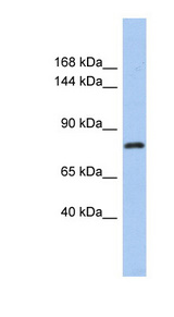 KLHL32 Antibody - KLHL32 antibody Western blot of OVCAR-3 cell lysate. This image was taken for the unconjugated form of this product. Other forms have not been tested.