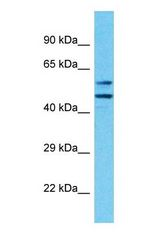 KLHL33 Antibody - Western blot of KLHL33 Antibody with human MCF7 Whole Cell lysate.  This image was taken for the unconjugated form of this product. Other forms have not been tested.