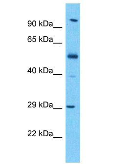 KLK13 / Kallikrein 13 antibody Western Blot of Esophagus Tumor. Antibody dilution: 1 ug/ml.  This image was taken for the unconjugated form of this product. Other forms have not been tested.