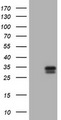 HEK293T cells were transfected with the pCMV6-ENTRY control (Left lane) or pCMV6-ENTRY KLK2 (Right lane) cDNA for 48 hrs and lysed. Equivalent amounts of cell lysates (5 ug per lane) were separated by SDS-PAGE and immunoblotted with anti-KLK2.