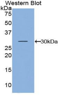 Western blot of recombinant KLK5 / Kallikrein 5.  This image was taken for the unconjugated form of this product. Other forms have not been tested.