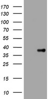 HEK293T cells were transfected with the pCMV6-ENTRY control (Left lane) or pCMV6-ENTRY KLK8 (Right lane) cDNA for 48 hrs and lysed. Equivalent amounts of cell lysates (5 ug per lane) were separated by SDS-PAGE and immunoblotted with anti-KLK8.