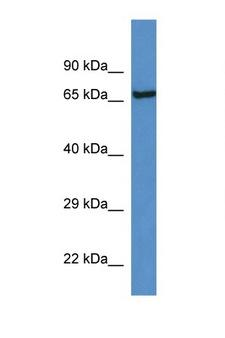 KLKB1 / Plasma Kallikrein Antibody - KLKB1 antibody Western blot of Rat Brain lysate. Antibody concentration 1 ug/ml. This image was taken for the unconjugated form of this product. Other forms have not been tested.