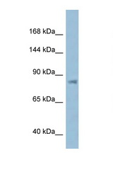 KPNB1 antibody Western blot of ACHN Cell lysate. Antibody concentration 1 ug/ml.  This image was taken for the unconjugated form of this product. Other forms have not been tested.