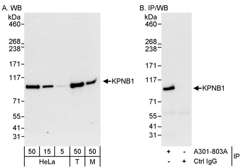 Detection of Human and Mouse KPNB1 by Western Blot (h&m) and Immunoprecipitation (h). Samples: Whole cell lysate from HeLa (5, 15 and 50 ug for WB; 1 mg for IP, 20% of IP loaded), 293T (T; 50 ug), and mouse NIH3T3 (M; 50 ug) cells. Antibodies: Affinity purified rabbit anti-KPNB1 antibody used for WB at 0.04 ug/ml (A) and 1 ug/ml (B) and used for IP at 3 ug/mg lysate. Detection: Chemiluminescence with exposure times of 30 seconds (A) and 10 seconds (B).