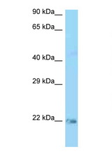 KRAS antibody LS-C146279 Western blot of Rat Lung lysate. Antibody concentration 1 ug/ml.  This image was taken for the unconjugated form of this product. Other forms have not been tested.