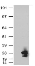 KRAS Antibody - HEK293T cells were transfected with the pCMV6-ENTRY control (Left lane) or pCMV6-ENTRY KRAS (Right lane) cDNA for 48 hrs and lysed. Equivalent amounts of cell lysates (5 ug per lane) were separated by SDS-PAGE and immunoblotted with anti-KRAS.