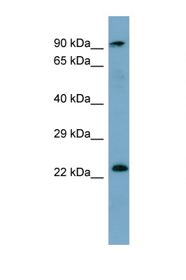 KRAS antibody Western blot of Fetal Heart lysate. Antibody concentration 1 ug/ml. This image was taken for the unconjugated form of this product. Other forms have not been tested.