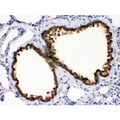 Cytokeratin 1 antibody IHC-paraffin. IHC(P): Rat Lung Tissue.