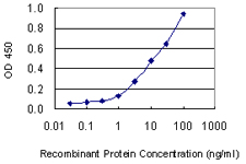 KRT1 / CK1 / Cytokeratin 1 Antibody - Detection limit for recombinant GST tagged KRT1 is 0.3 ng/ml as a capture antibody.