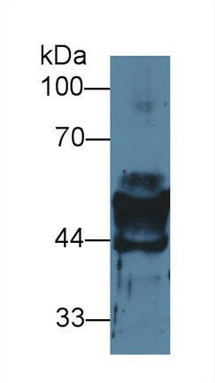 Western Blot; Sample: Mouse Stomach lysate; Primary Ab: 2µg/ml Rabbit Anti-Mouse KRT14 Antibody Second Ab: 0.2µg/mL HRP-Linked Caprine Anti-Rabbit IgG Polyclonal Antibody