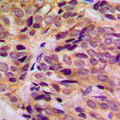 Immunohistochemical analysis of Cytokeratin 16 staining in human breast cancer formalin fixed paraffin embedded tissue section. The section was pre-treated using heat mediated antigen retrieval with sodium citrate buffer (pH 6.0). The section was then incubated with the antibody at room temperature and detected using an HRP conjugated compact polymer system. DAB was used as the chromogen. The section was then counterstained with hematoxylin and mounted with DPX.
