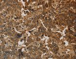 Immunohistochemistry of Human liver cancer using KRT16 Polyclonal Antibody at dilution of 1:30.