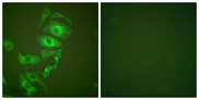 Immunofluorescence analysis of HepG2 cells, using Keratin 17 Antibody. The picture on the right is blocked with the synthesized peptide.