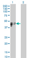 Western blot of KRT17 expression in transfected 293T cell line by KRT17 monoclonal antibody.