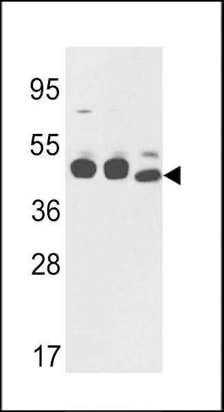 Western blot of CYK18 Antibody in K562,NCI-H460 cell line lysates and mouse stomach tissues lysates(35 ug/lane). CYK18(arrow) was detected using the purified antibody.