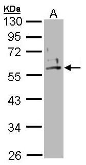 Sample (30 ug of whole cell lysate). A: A431