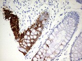 IHC of paraffin-embedded Human colon tissue using anti-KRT20 mouse monoclonal antibody. (Heat-induced epitope retrieval by 10mM citric buffer, pH6.0, 120°C for 3min).