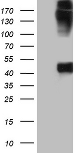 KRT35 / Keratin 35 / KRTHA5 Antibody - HEK293T cells were transfected with the pCMV6-ENTRY control. (Left lane) or pCMV6-ENTRY KRT35. (Right lane) cDNA for 48 hrs and lysed. Equivalent amounts of cell lysates. (5 ug per lane) were separated by SDS-PAGE and immunoblotted with anti-KRT35. (1:2000)