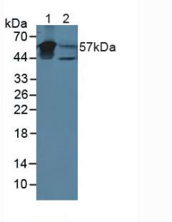 Western Blot; Sample: Lane1: Mouse Bladder Tissue; Lane2: Human Urine.
