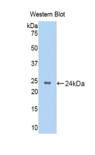 Western blot of recombinant KRT4 / CK4 / Cytokeratin 4.  This image was taken for the unconjugated form of this product. Other forms have not been tested.
