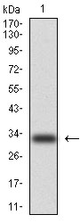 Western blot using CK5 monoclonal antibody against human CK5 (AA: 158-272) recombinant protein. (Expected MW is 33.3 kDa)