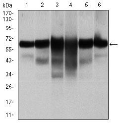 Western blot using CK5 mouse monoclonal antibody against A431 (1), MCF-7 (2), HeLa (3), HepG2 (4), 3T3-L1 (5), and COS-7 (6) cell lysate.
