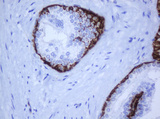 IHC of paraffin-embedded Human prostate tissue using anti-KRT5 mouse monoclonal antibody.