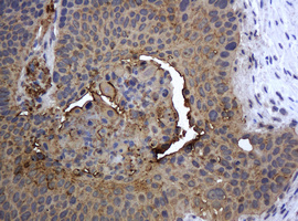 IHC of paraffin-embedded Carcinoma of Human lung tissue using anti-KRT5 mouse monoclonal antibody.