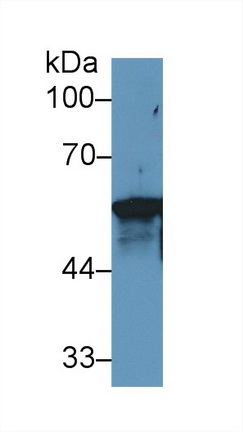 Western Blot; Sample: Human MCF7 cell lysate; Primary Ab: 1µg/ml Rabbit Anti-Rat KRT6A Antibody Second Ab: 0.2µg/mL HRP-Linked Caprine Anti-Rabbit IgG Polyclonal Antibody