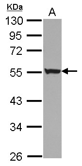 Sample (30 ug of whole cell lysate) A: NT2D1 10% SDS PAGE KRT6 / Cytokeratin 6 antibody diluted at 1:1000