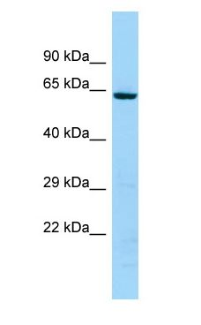 KRT74 antibody Western Blot of 721_B.  This image was taken for the unconjugated form of this product. Other forms have not been tested.