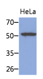 Western Blot: The cell lysates of HeLa (40 ug) were resolved by SDS-PAGE, transferred to PVDF membrane and probed with anti-human KRT8 antibody (1:1000). Proteins were visualized using a goat anti-mouse secondary antibody conjugated to HRP and an ECL detection system.