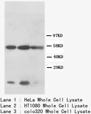 KRT8 / CK8 / Cytokeratin 8 Antibody -  This image was taken for the unconjugated form of this product. Other forms have not been tested.