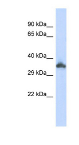 KRTAP24-1 Antibody - KRTAP24-1 antibody Western blot of 293T cell lysate. This image was taken for the unconjugated form of this product. Other forms have not been tested.