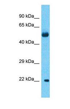 KRTAP27-1 Antibody - Western blot of KRTAP27-1 Antibody with Lung Tumor lysate.  This image was taken for the unconjugated form of this product. Other forms have not been tested.