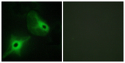 Immunofluorescence analysis of HeLa cells, using KSR2 Antibody. The picture on the right is blocked with the synthesized peptide.