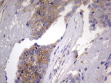 IHC of paraffin-embedded Adenocarcinoma of Human breast tissue using anti-KYNU mouse monoclonal antibody. (heat-induced epitope retrieval by 1 mM EDTA in 10mM Tris, pH8.5, 120°C for 3min).